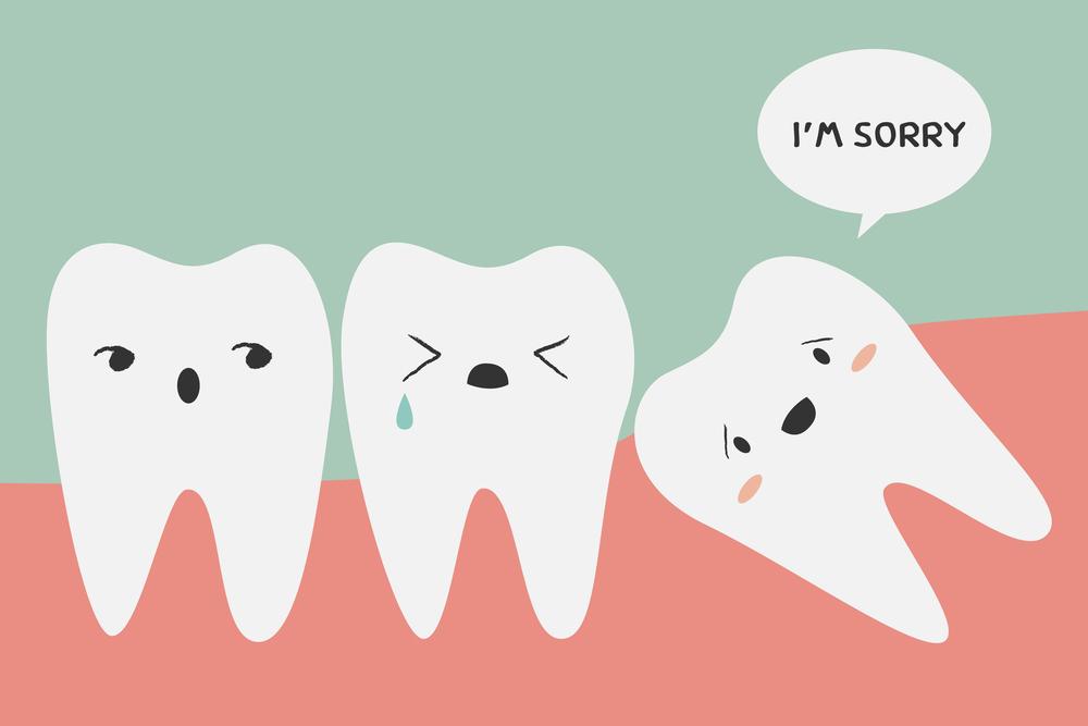 简化去除智齿