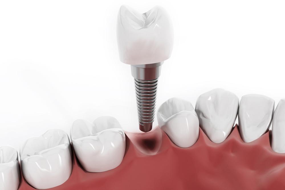 Implantációs pótlások