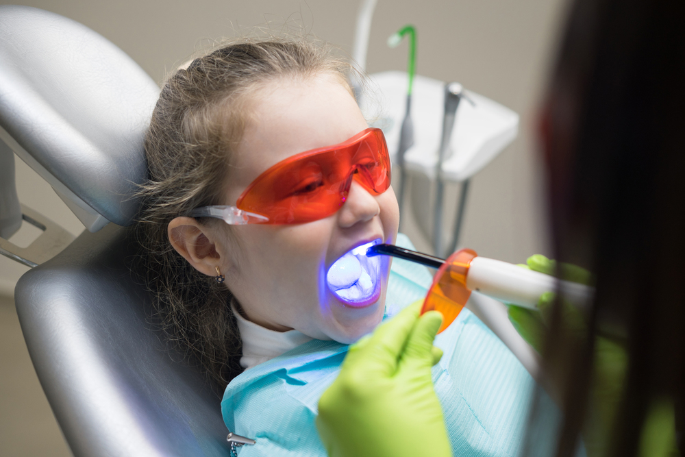 复合材料填补牙齿
