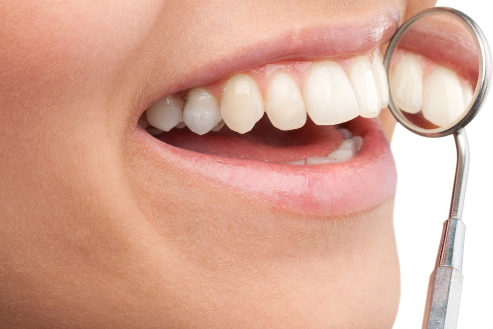 牙颈部填充